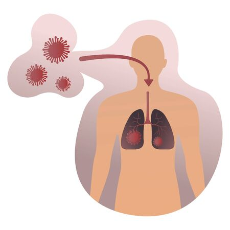 Infectious disease. Medical Infographic set with icons and other elements. 2019-nCoV coronavirus concept with virus enters the lungs human on white biohazard virus sign background Vettoriali