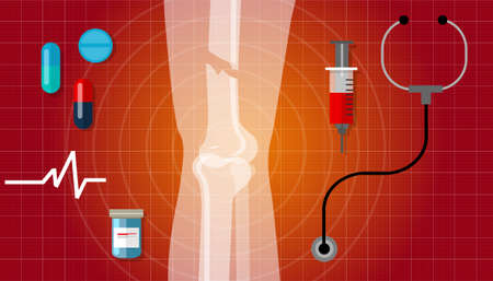 x ray: bone fracture broken legs human anatomy x ray medical treatment illustration icon vector Illustration