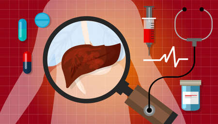 肝臓がん疾患人体解剖学病気不健康な治療医療イラスト
