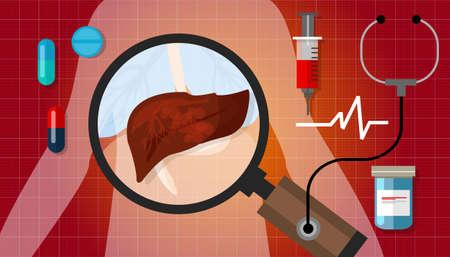 higado humano: ilustración de la enfermedad del cáncer de hígado anatomía humana tratamiento malsano enfermo vector médica