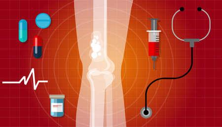 bone cancer: bone cancer health medication anatomy medical care cure vector