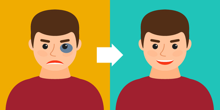 young man with a bruise or without. Before and after. Vector illustration. Recovery, healing, regeneration.