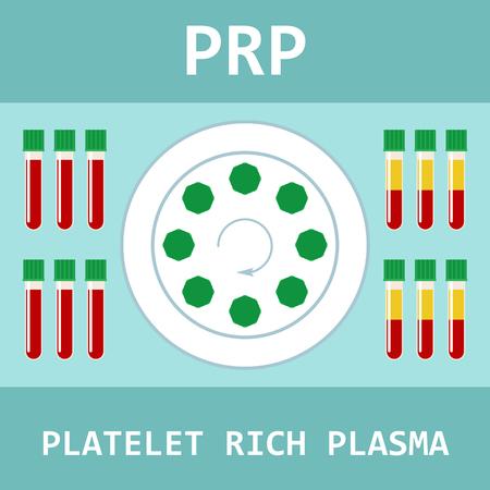 血小板豊富なプラズマ。PRPの近代的な治療方法。血液および遠心分離機が付いている試験管。ベクトルイラスト。