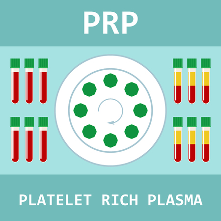 Platelet rich plasma. Modern method of treatment of PRP. Test tube with blood and centrifuge. Vector illustration.