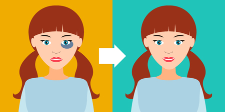 Beautiful young girl with a bruise and without. Before and after. Vector illustration. Recovery, healing, regeneration.