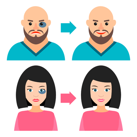 young man and girl with a bruise or without. Before and after. Vector illustration. Recovery, healing, regeneration.