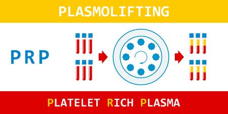 Platelet rich plasma. Plasmolifting, modern method of treatment of PRP. Test tube with blood and centrifuge. Vector illustration.  イラスト・ベクター素材