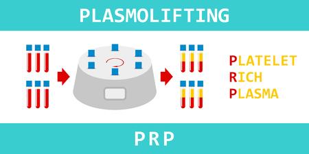 Platelet rich plasma. Plasmolifting, modern method of treatment of PRP. Test tube with blood and centrifuge. Vector illustration. Illustration