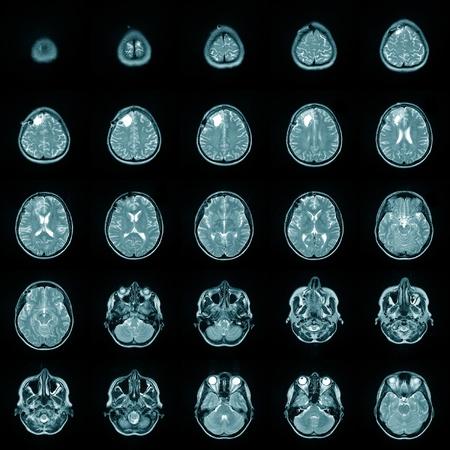 Magnetic risonance image MRI of a human brain photo