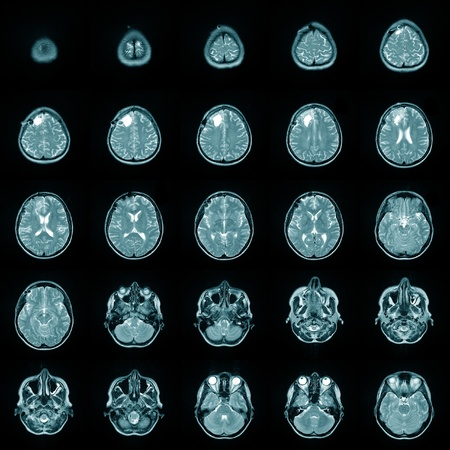 cat scan: Magnetic risonance image MRI of a human brain Stock Photo