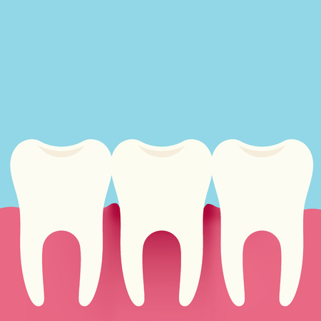 Flat design illustration of three teeth, gums and gingivitis. Dental Care, Isolated On Blue-Green Background - Vector