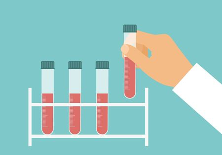 Flat design cartoon illustration of scientist or doctor hand with test tube full of blood for analysis - vector