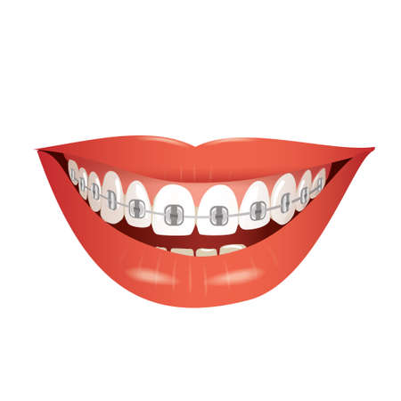 smiling mouth with braces isolated  vector illustration Ilustrace