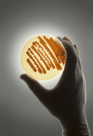 Petrie dish with bacteria in growth medium used for biological research and discovery