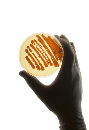 Petrie dish with bacteria in growth medium used for biological research and discovery photo