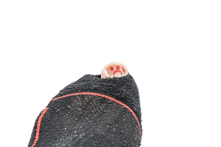 A close up of a sad smily painted toe nail lurking out of a torned sock.