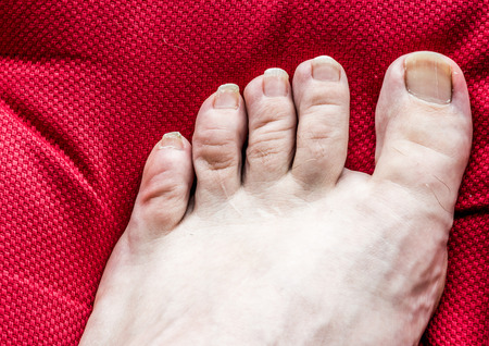 unas largas: uncared pies con las u�as largas. Foto de archivo