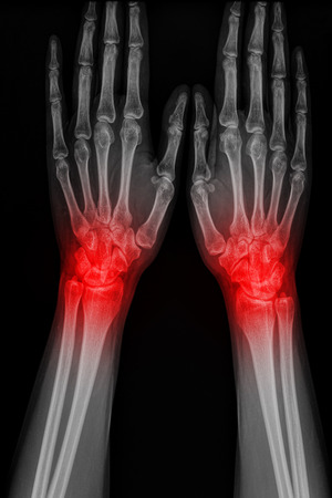 Film x-ray hand of man with arthritis Stock Photo
