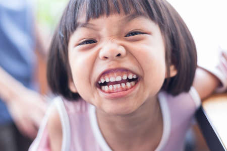 asia girl with big smile and show her milk teeth, selective focus