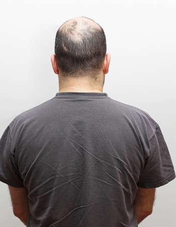 alopecia: Rear view of hair loss at middle age man