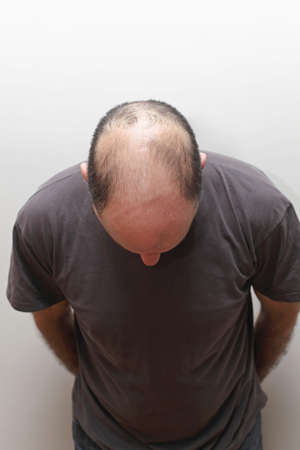 Top view of hair loss problem at middle age man photo