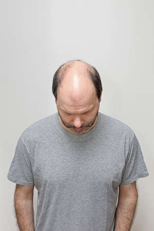 Top View of Hair Loss Problem at Middle Age Bald Man 스톡 콘텐츠