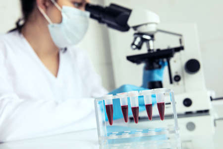 Eppendorf test-tubes with blood to examine. Eppendorf test-tubes with blood and female medician examines samples under microscope Stock Photo