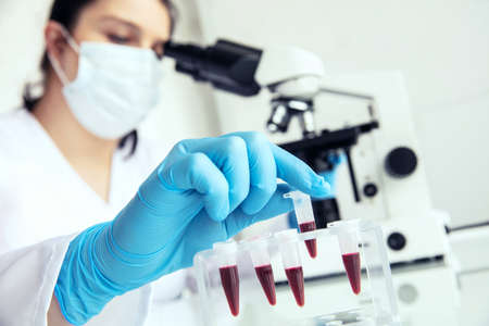 Hand in medical gloves takes eppendorf with blood. Female medician takes eppendorf test-tube with human blood to examine and microscope in the background. Stock Photo