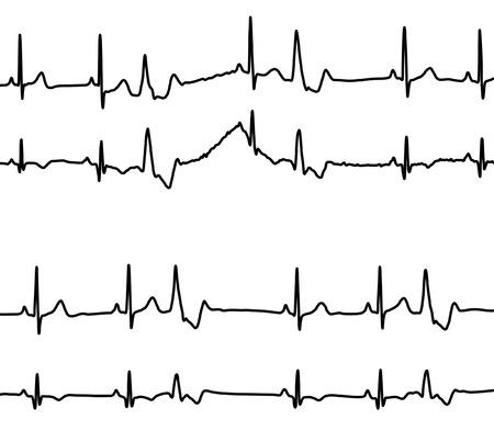 Herzen Krankheiten Diagramme - Venticular verfrüht Beat (Extrasystole) und Bigeminy (Kupplung) Standard-Bild - 6042145