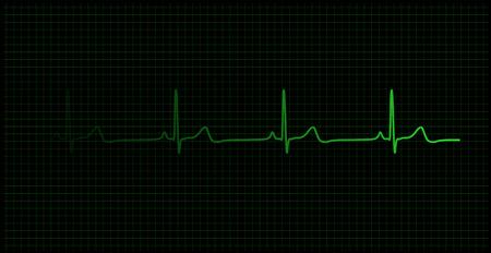 Gesunde Heartbeat-Diagramm auf den Monitor-Vektor Standard-Bild - 6042147