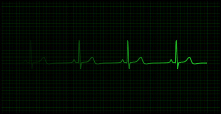 Healthy heartbeat graph on the monitor vector Illustration