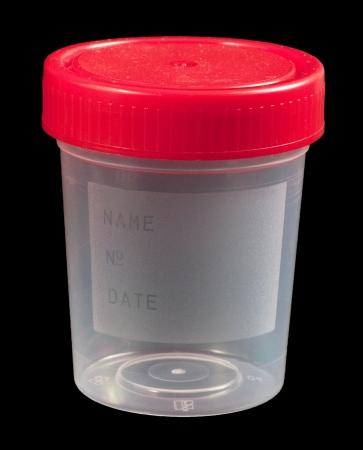 urinalysis: Contenitore di campione di urina vuota isolato su nero