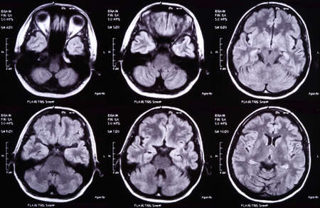 X-ray image of the brain computed tomography Stock Photo - 8125039