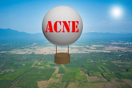 Write a ACNE on the balloon. Stock Photo