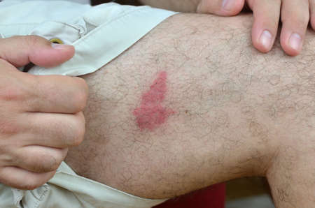 consequence: Redness of skin on a leg as a consequence of an unknown insect bites (probably a wasp)