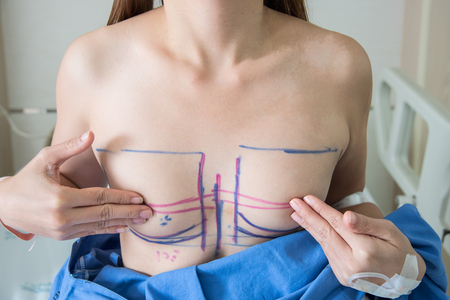 naked girl black hair: Woman breast marked out for cosmetic surgery Stock Photo