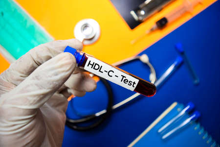 HDL-C Test with blood sample. Top view isolated on color background. Healthcare/Medical concept Stock fotó