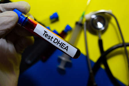 Test Dhea text with blood sample. Top view isolated on office desk background. HealthcareMedical concept