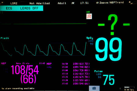 Normal heart function on pulse oximeter pleth graph bar on monitor display and blood pressure function