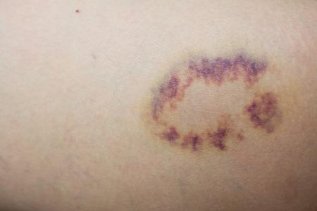 피부에 보라색 병변을 닫았다. 스톡 콘텐츠