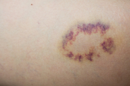 Closed up violet lesion on skin