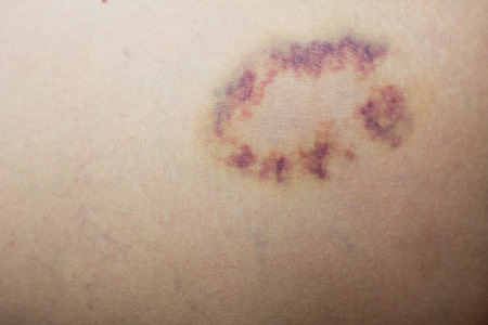 contusion: Closed up violet lesion on skin