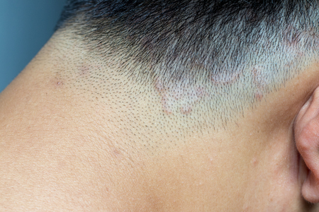 Closed up of ringworm (tinea) on head of asian man (Dermatitis) Stock Photo