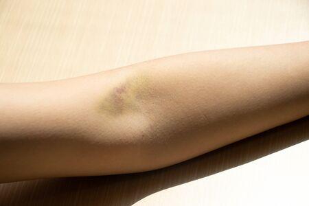 Bruise injury on the female arm background