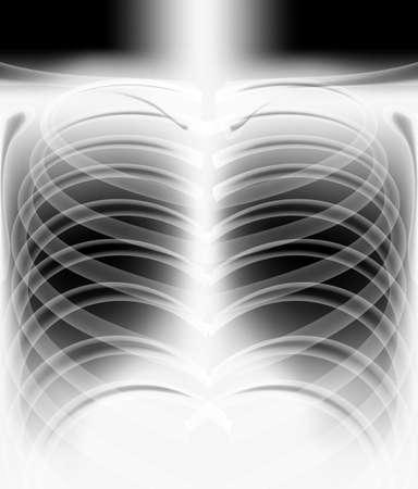 illustration of human x - ray film