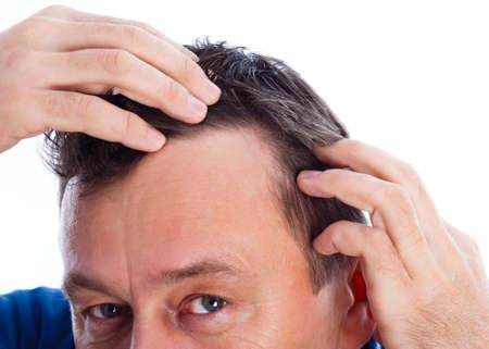 calvicie: Hombre de mediana edad que sufren de pérdida de cabello androgénica.