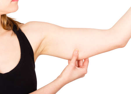 Woman showing loose upper arm thanks to unhealthy lifestyle.