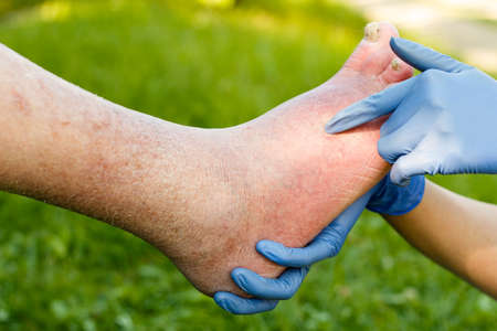 Doctor examining with gloves old patient's ill foot. Standard-Bild