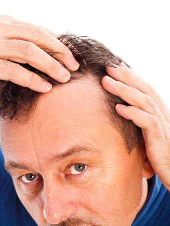 Middle aged man examining his hair loss. Imagens