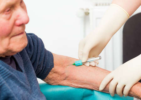 sudden death: Preventing sudden death by monitoring blood clotting with simple tests. Stock Photo